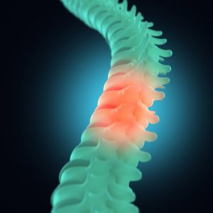 Spinal Cord Injury Attorneys Bucks County PA