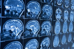 Bucks County PA Brain Injury Attorneys